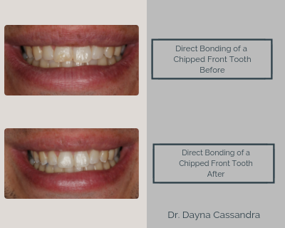 Direct Bonding of a Chipped Front Tooth