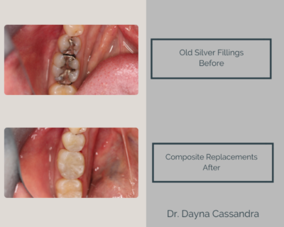 Replacing silver filings with composite fillings