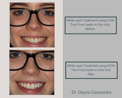White spot treatment using ICON on two front teeth in one visit